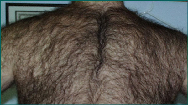 Laser Hair Removal For Men In Orlando Chest Hair Removal